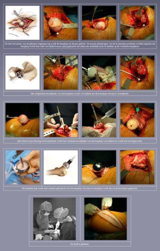 De resurfacing heupprothese