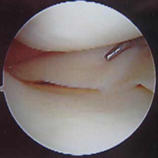 Gezonde meniscus